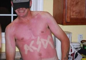 sunburn-pictures-dumpaday-11
